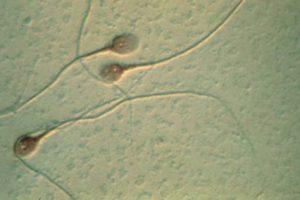 Cambios en el moco cervical durante el ciclo: su apariencia y funciones que cumple