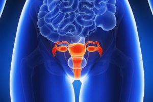 ¿Puede la endometriosis repetirse después de la histerectomía?