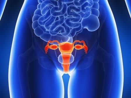Puede la endometriosis repetirse después de la histerectomía ...
