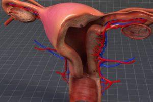 El rol del cuello uterino en el dolor menstrual