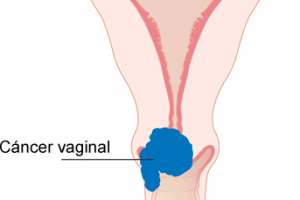 Todo sobre el cáncer vaginal