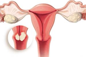 Tipos de cáncer vaginal