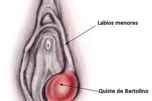 ¿Qué es un quiste/absceso de Bartolino? Síntomas, diagnóstico y tratamiento