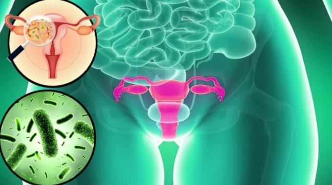 Imágen: vaginitis bacteriana